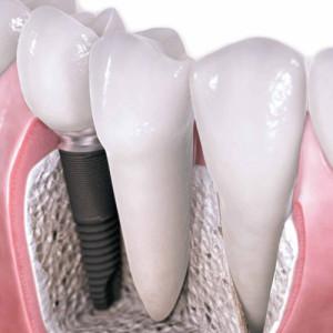 implanty praga